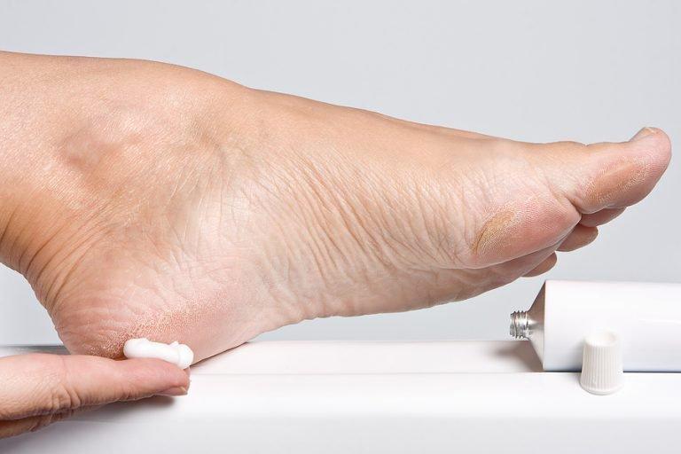 Как лечить диабетическую стопу в домашних условиях
