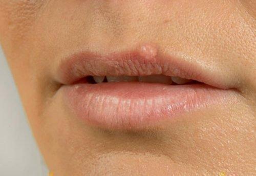 Бородавка на губе: как вылечить нарост на внутренней стороне