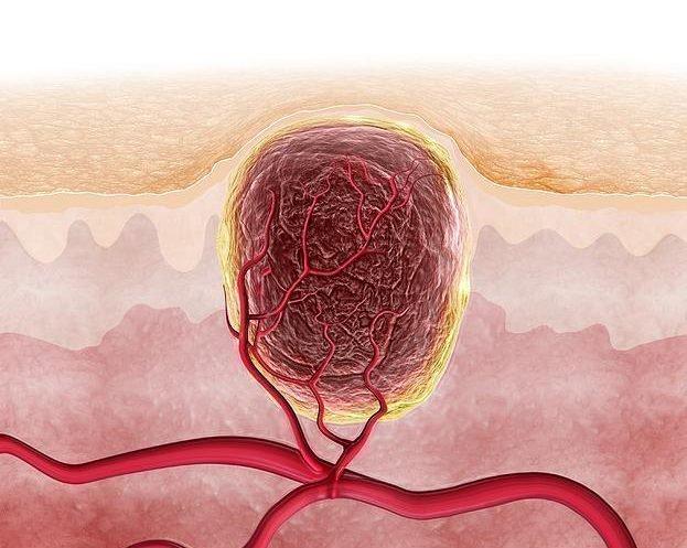 Что делать если бородавка кровоточит и не заживает: причины и лечение