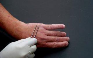 Бородавки: причины появления и лечение