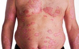 Симптомы экссудативного псориаза