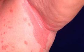 Симптомы псориатической эритродермии