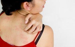 Почему чешется псориаз, как остановить зуд
