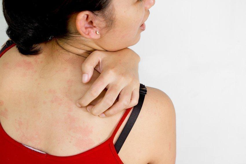 Псориаз чешется или нет и как бороться с зудом