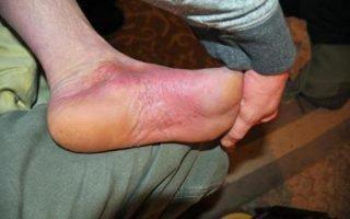 Проявление псориаза на ногах