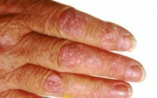 Псориаз появился на руках: причины и симптомы