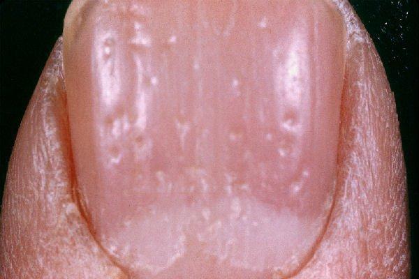 Отличить псориаз ногтей от грибка ногтей