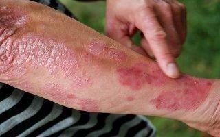 Первичные симптомы псориаза у мужчин