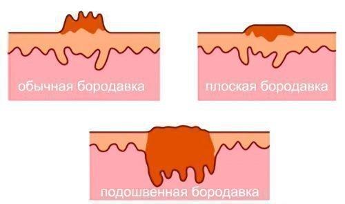Разные бородавки