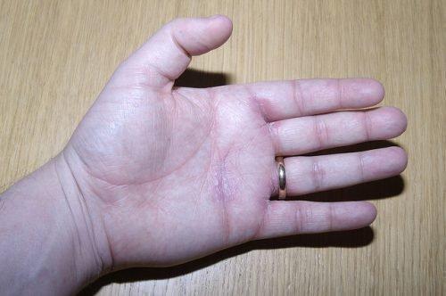 Псориаз заразен или нет: передаётся ли в семье, передача по наследству
