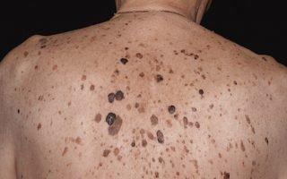 Лечение и профилактика себорейного кератоза
