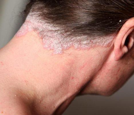 Себорейный псориаз носа лечение