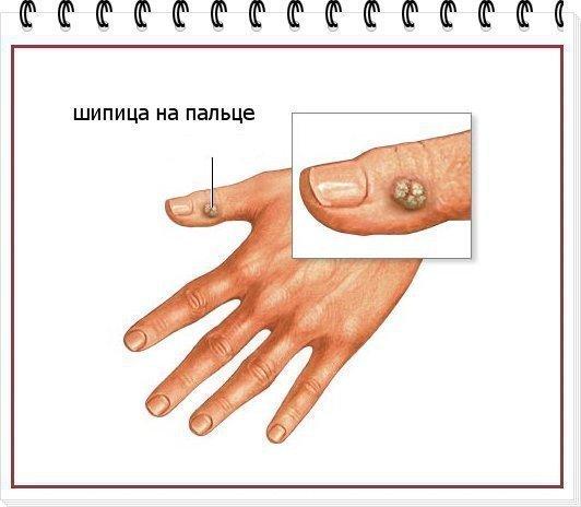 Шипица на пальце руки у ребенка лечение