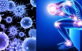 Псориаз является аутоиммунным заболеванием?