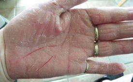 Как эффективно излечиться от псориаза