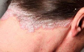 Лечение псориаза на волосяной части головы