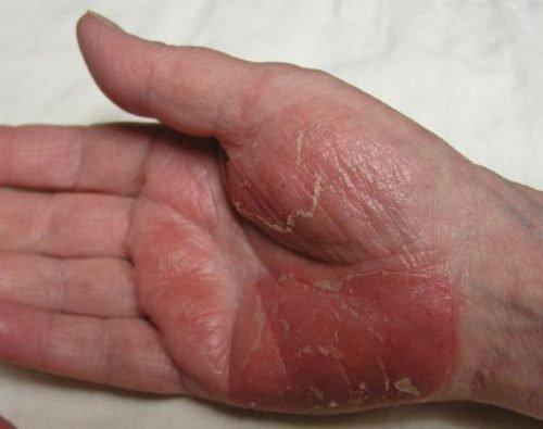 Деготь от псориаза: применение мази, лечебного мыла