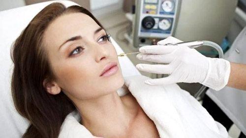 Удаление бородавки лазером на лице