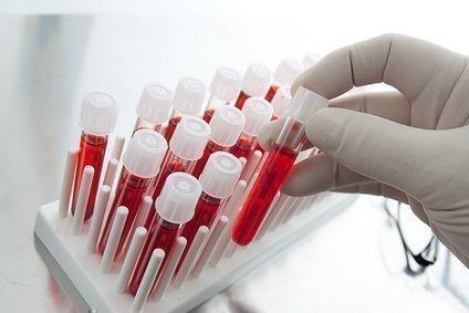 Папилломы и кондиломы: чем отличаются, диагностика, лечение