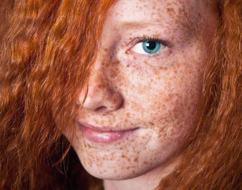 Бледная кожа и веснушки