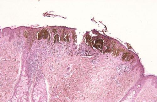 Диспластический пигментный невус