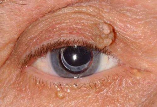 Базальноклеточная папиллома, что такое кератотический вариант