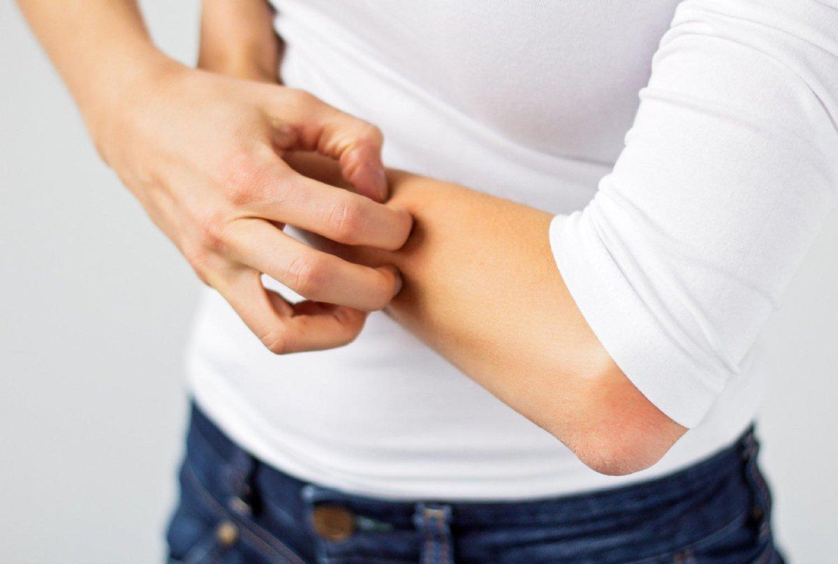 Почему папиллома чешется - зуд при ВПЧ