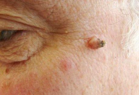 Папиллома на лице