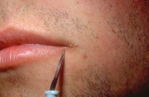 Папилломы на губе