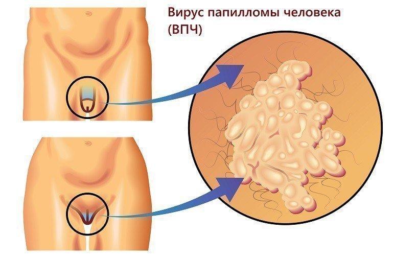 Папилломы в паху у мужчин лечение
