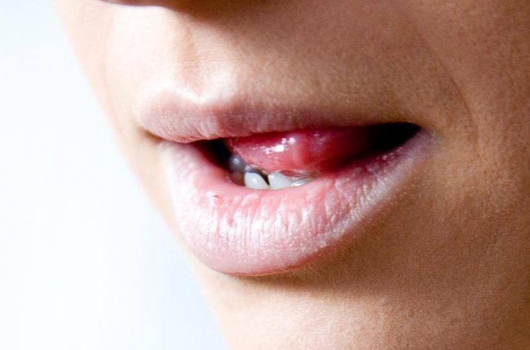 Во рту папилломы - лечение папилломы на слизистой рта
