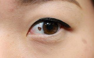 Разновидности, значение и лечение родинки в глазу