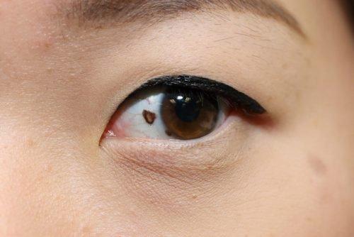 Родинка в глазу: невус хориоидеи, конъюнктивы, радужки, сетчатки, лечение