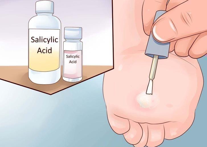 Как убрать папилломы в домашних условиях