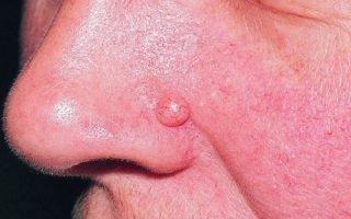 Основные причины и разновидности внутридермального невуса