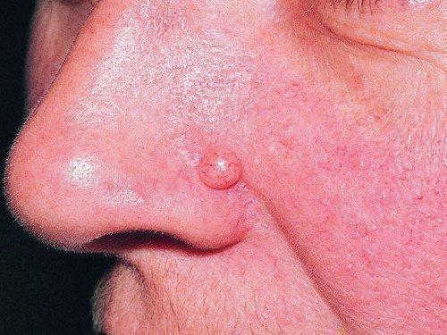 Невус меланоцитарный, папилломатозный невус (фото). Пограничный меланоцитарный невус
