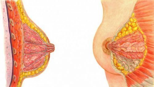 Внутрипротоковая папиллома молочной железы