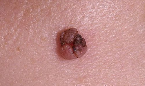 Воспаление папилломы