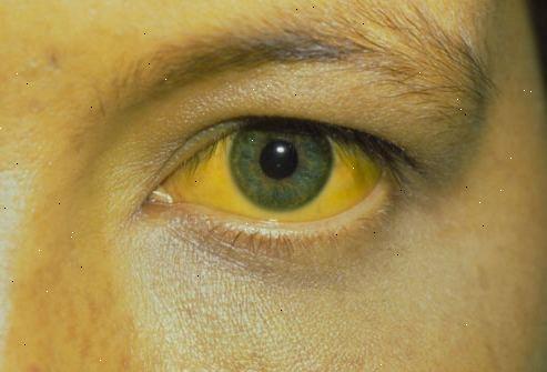 Полип желчного пузыря: симптомы и лечение, чем опасен, нужно ли удалять