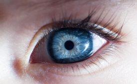 Глазная меланома