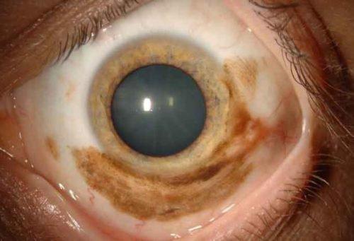Нейрокожный меланоз