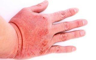 Эффективные мази от дерматита