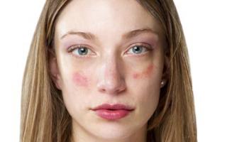 Эффективность мази с цинком от дерматита