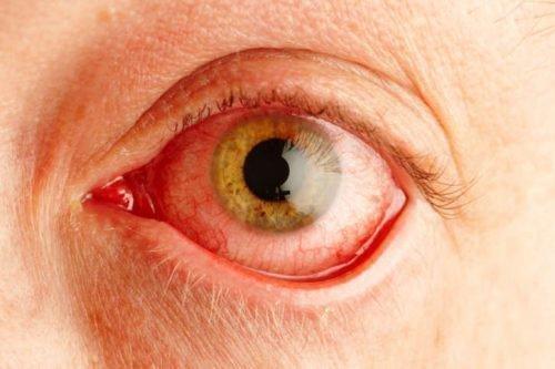 Экзема на глазах воспаление