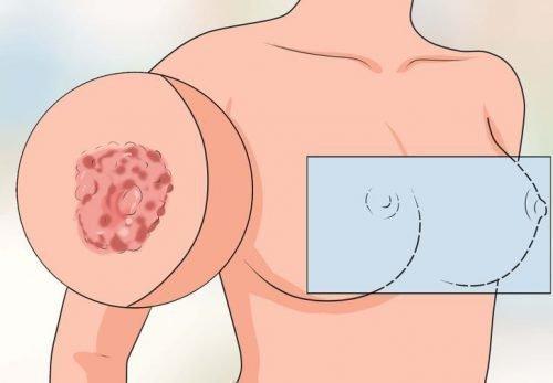 Экзема на груди