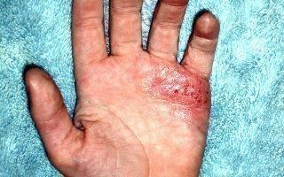 Экзема на коже рук