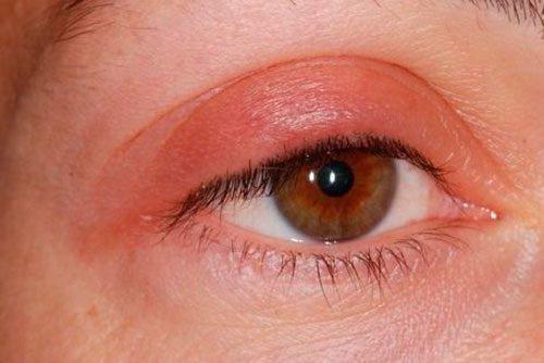 Глазной дерматит
