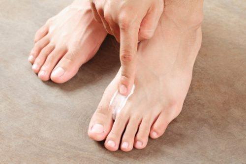 Грибковые инфекции на ногах
