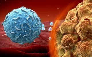 Удаление меланомы: способы и последствия