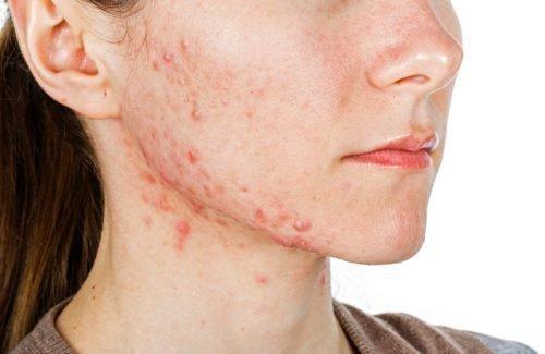 Экзема на лице, на носу, на подбородке: лечение лекарственными препаратами